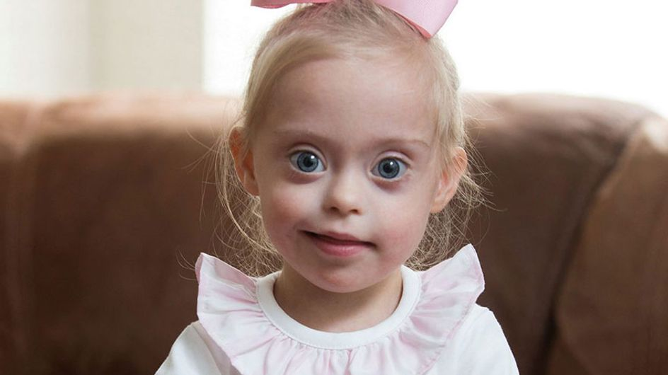 Connie-Rose, modelo con dos años y síndrome de down