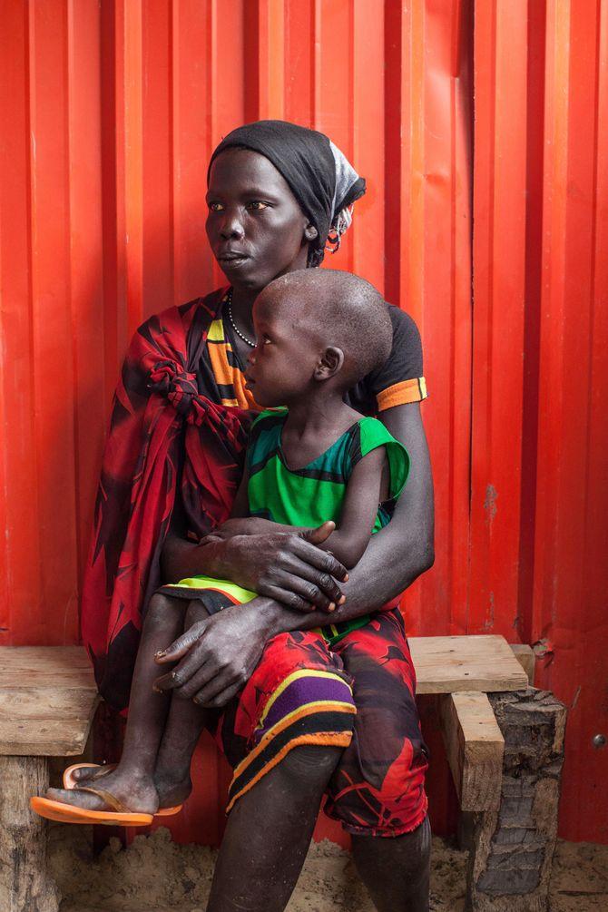 Une mère et son enfant souffrant de malnutrition