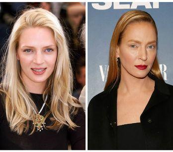 Ces stars qui nous prouvent que la chirurgie esthétique n'est pas une solution (