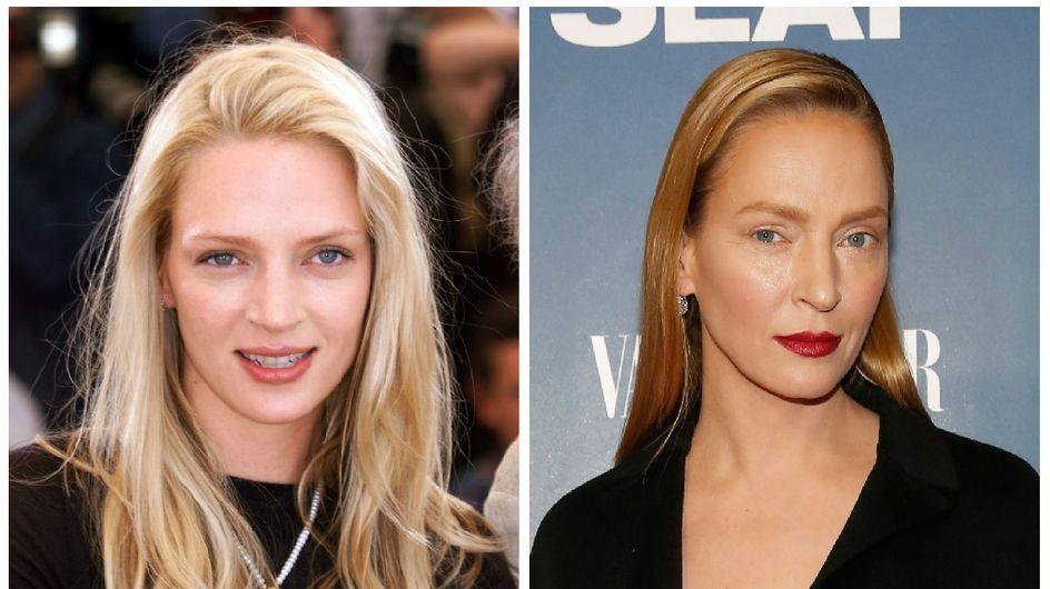 Ces stars qui nous prouvent que la chirurgie esthétique n'est pas une solution (photos)