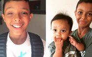 Als Baby verlor er ein Auge - heute hat er den Mut gefunden zu zeigen, was ihn s