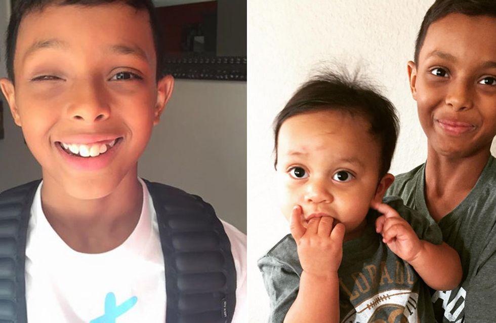 Als Baby verlor er ein Auge - heute hat er den Mut gefunden zu zeigen, was ihn so besonders macht