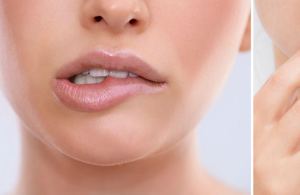 10 Momente, die leider jeder kennt, der unter Lippenherpes leidet