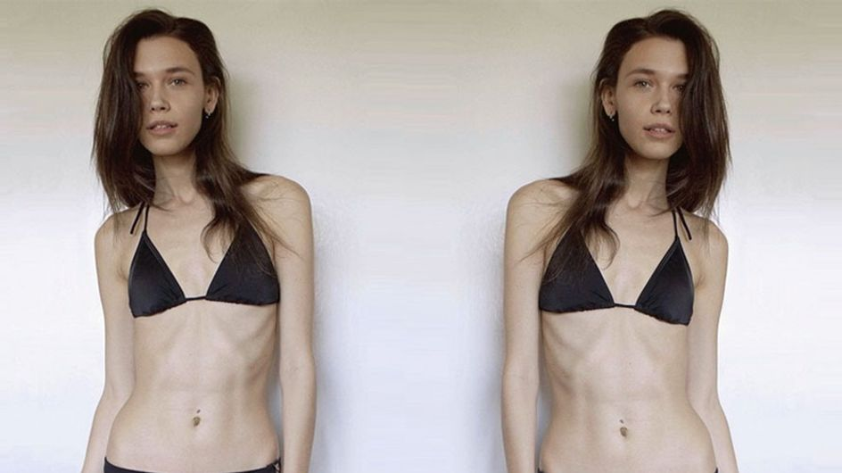 Size 8 Model Told To 'Slim Down To The Bone'