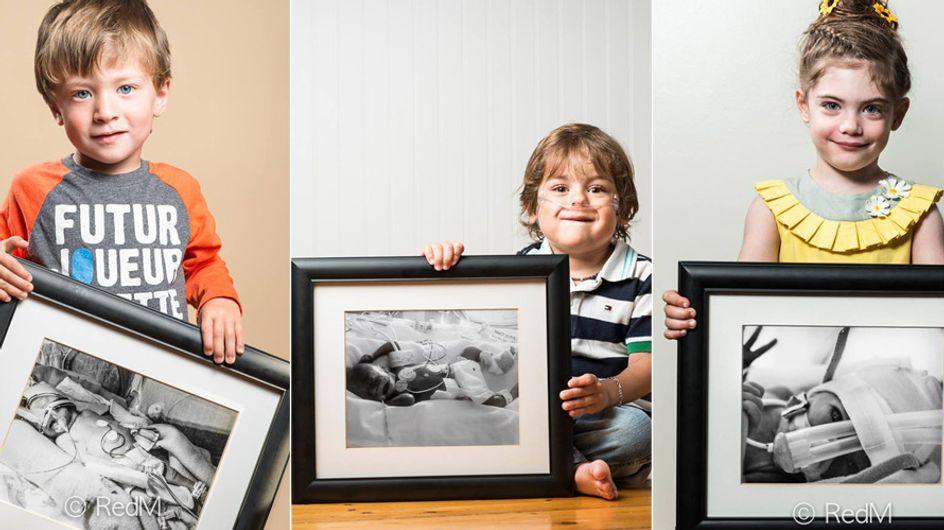 Kleine Kämpfer: Diese Vorher-Nachher-Bilder von Frühchen geben Eltern Hoffnung