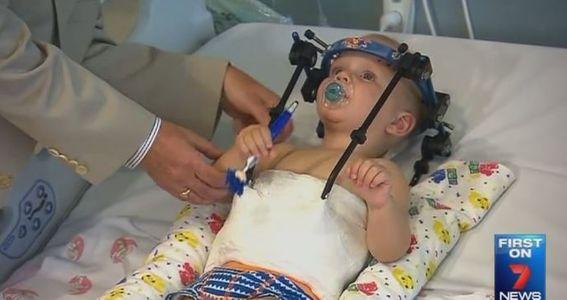 Le petit Jackson Taylor après l'opération