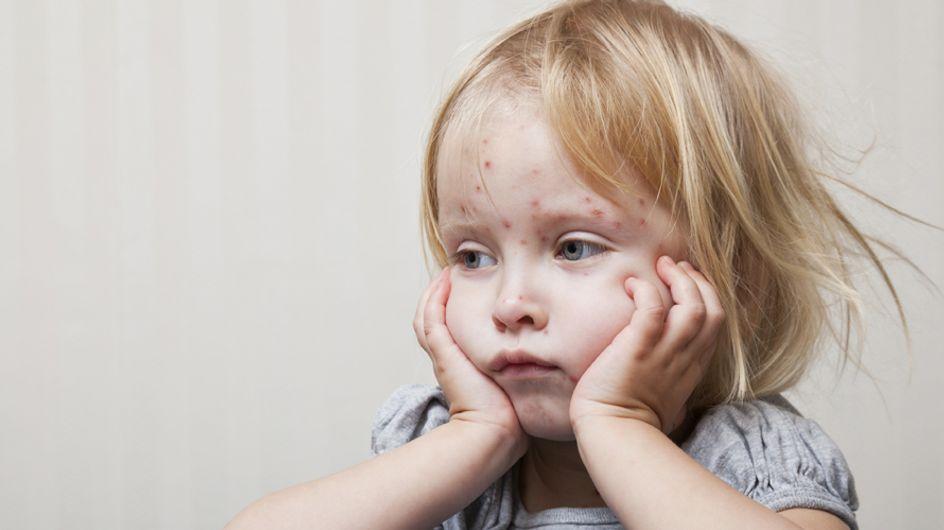 Varicella: sintomi, diagnosi e cura di una delle malattie più diffuse tra i bambini
