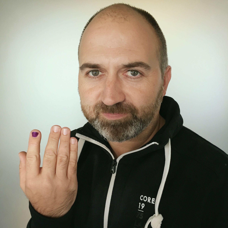 Lackierten fingernägeln mit männer Lackierte Fingernägel