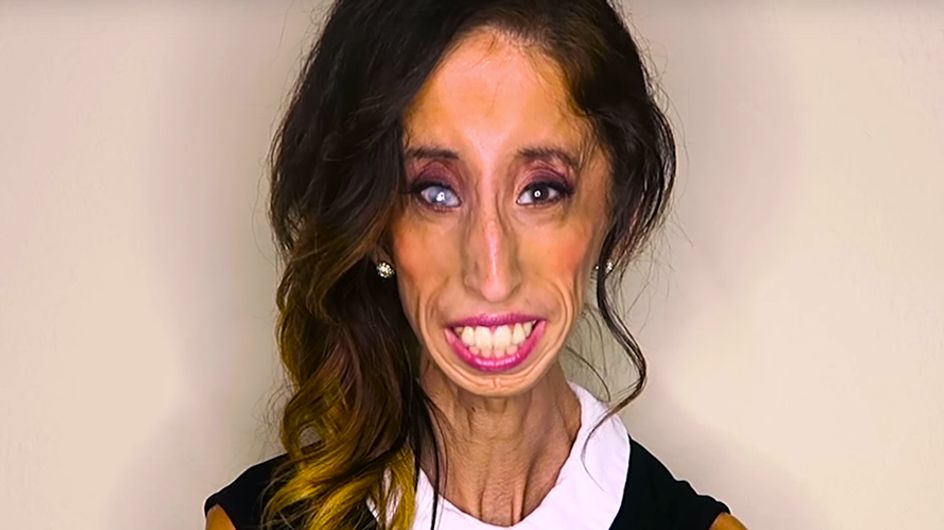 How The World's So-Called 'Ugliest Woman' Turned Online Hate Into The Most Inspirational Campaign Ever