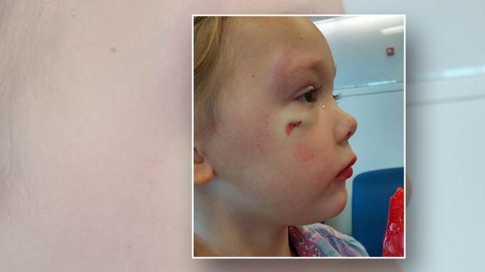 Wie ein Pfleger auf das blaue Auge einer 4-Jährigen reagierte, ist nicht okay
