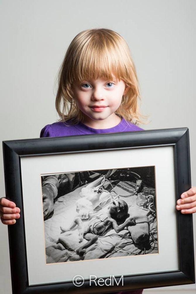 Amélia, née à 26 semaines