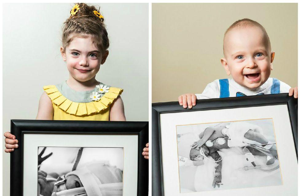Pour donner courage aux parents il photographie de touchants avant/après de bébés prématurés