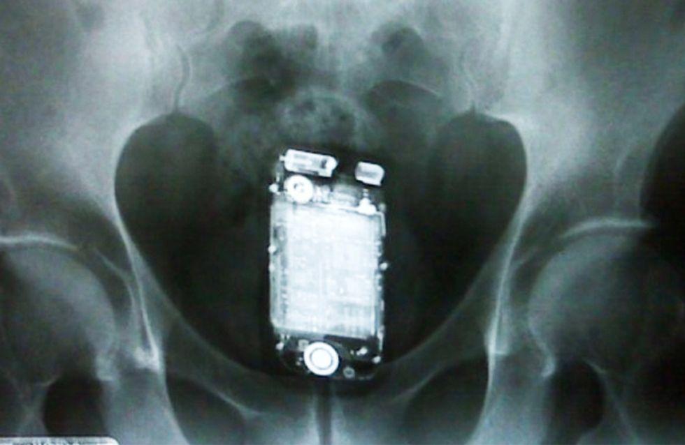 Los 24 objetos más raros encontrados, dentro de una persona, al hacer una radiografía