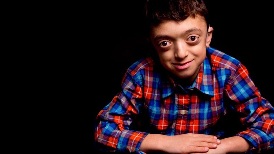 Las fotografías de niños con enfermedades raras que nos enseñan a mirar más allá de su condición