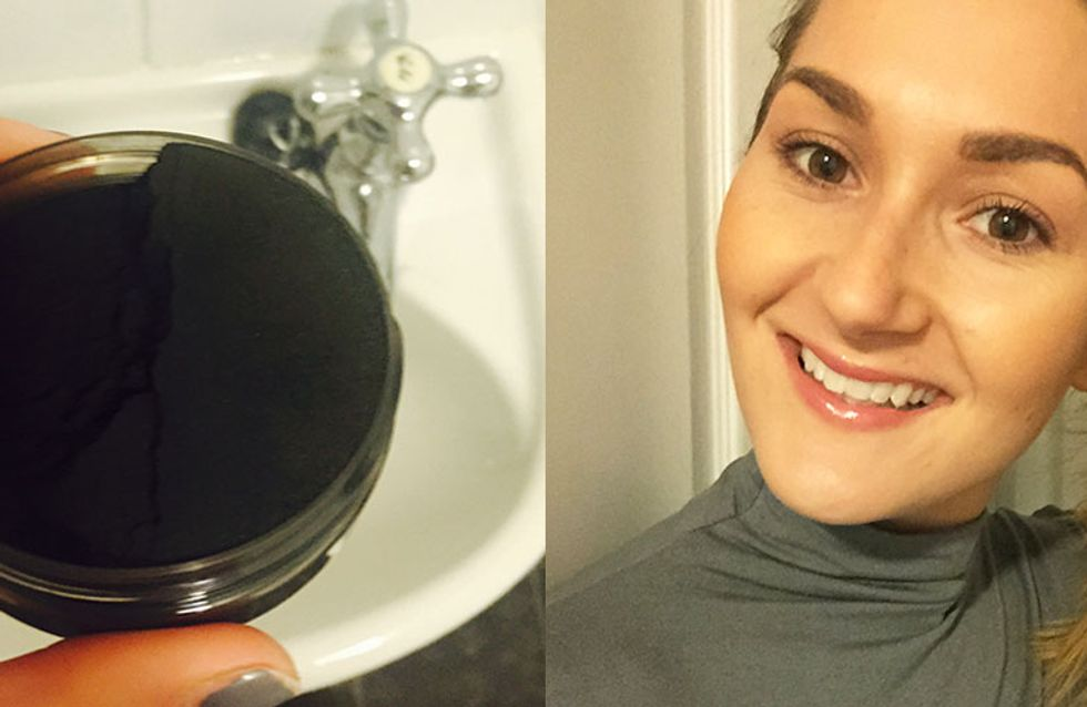 We Tried Whitening Our Teeth Naturally With Black Charcoal & This Is What Happened