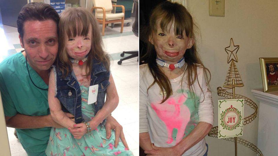 Vor 2 Jahren nahm ein Feuer ihr die Familie - doch dieses Weihnachten können wir ihr alle helfen
