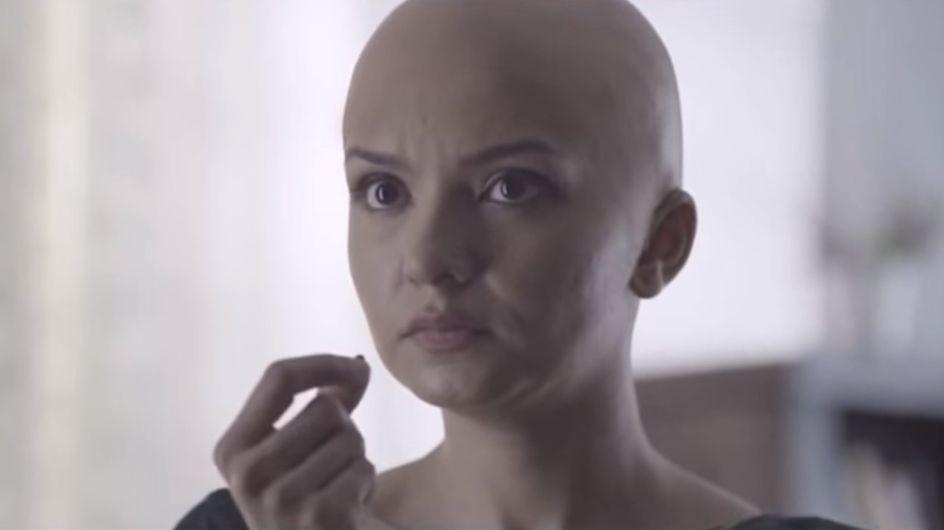 Dieses Video beweist: Menschen brauchen keine Haare, um wunderschön zu sein