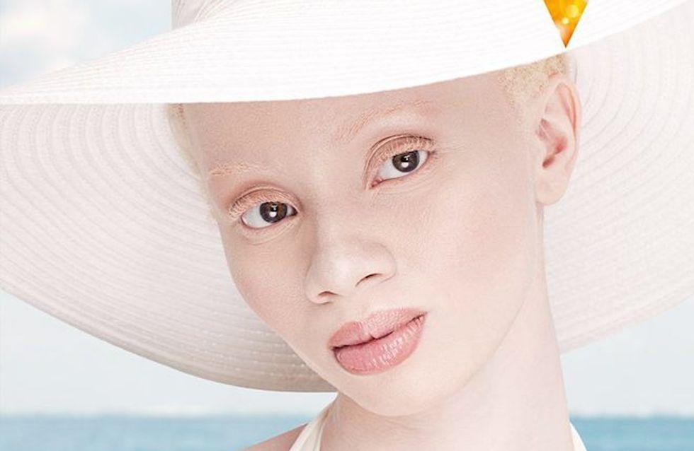 Les mannequins albinos qui ont conquis le monde de la mode (Photos)