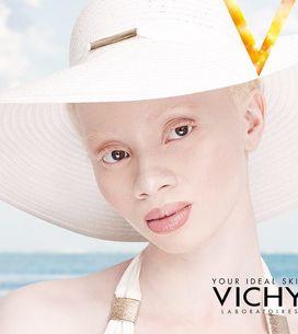 7 modelli (e modelle) albini che hanno conquistato il mondo della moda