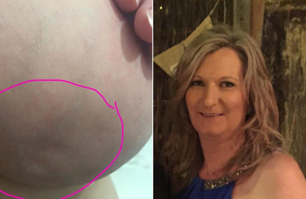 DIESE winzige Veränderung ihrer Brust erschüttert ihr Leben - nun möchte sie andere Frauen warnen