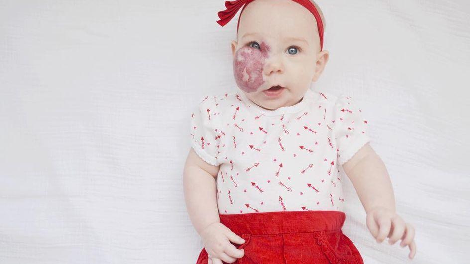 Questa mamma condivide le foto della figlia per combattere i pregiudizi (foto)