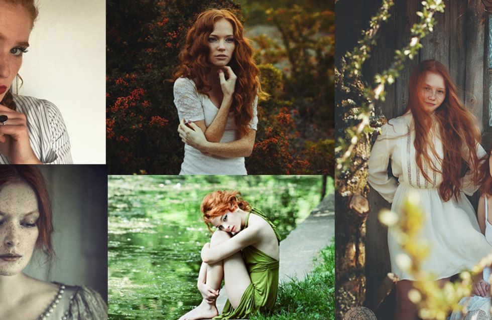 Redheads Aren't Dying Out...And They Also Might Be Genetically Superior