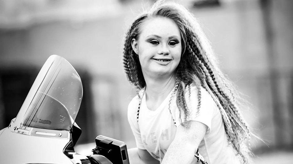 Modelos con síndrome de Down: mucho más que belleza