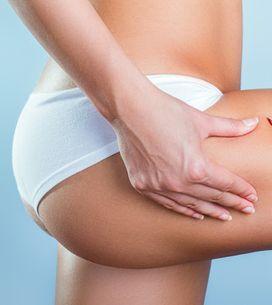 Yesoterapia: una nueva forma de combatir la celulitis