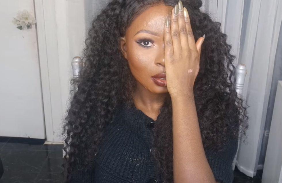 Grande brûlée, elle devient Youtubeuse beauté et délivre un superbe message (Photos)