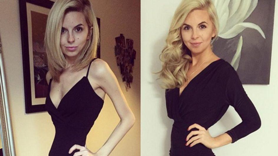 Cette jeune femme partage son combat contre l'anorexie sur lnstagram (Photos)