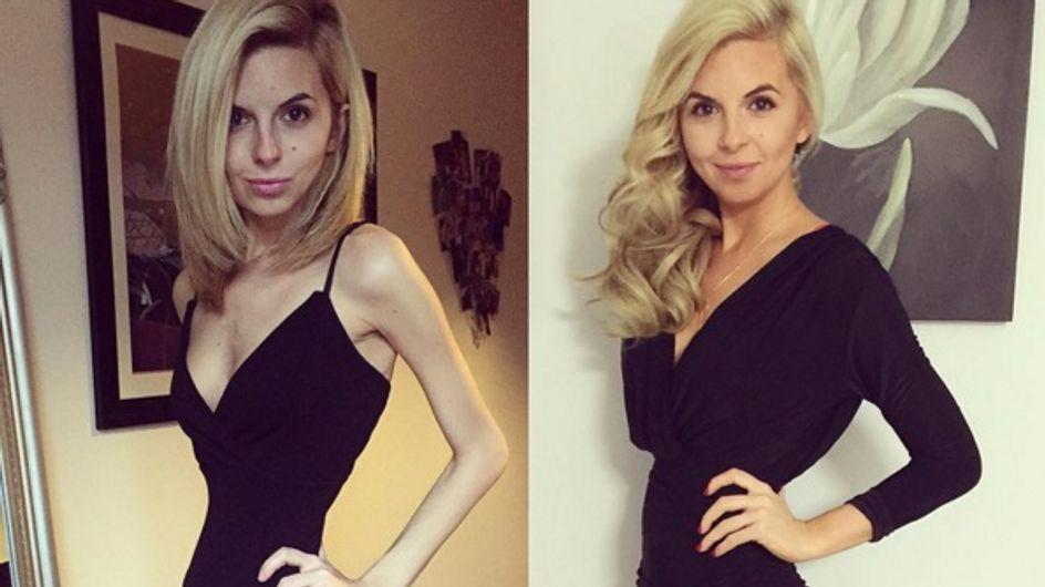 Questa ragazza combatte l'anoressia su Instagram e... ne sta uscendo vincitrice