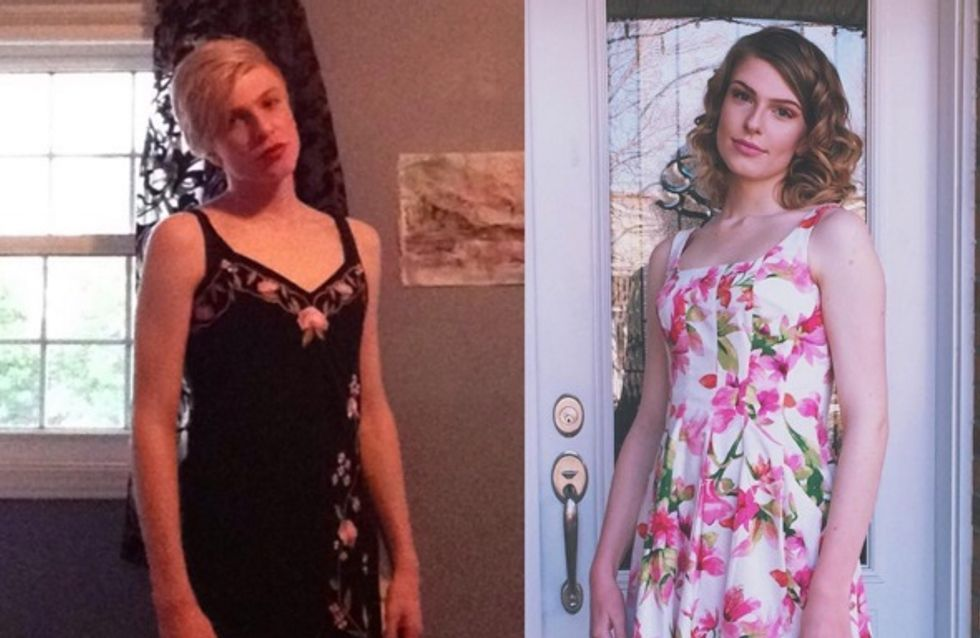 Des personnes transgenres partagent leur transition en images pour briser le silence (Photos)
