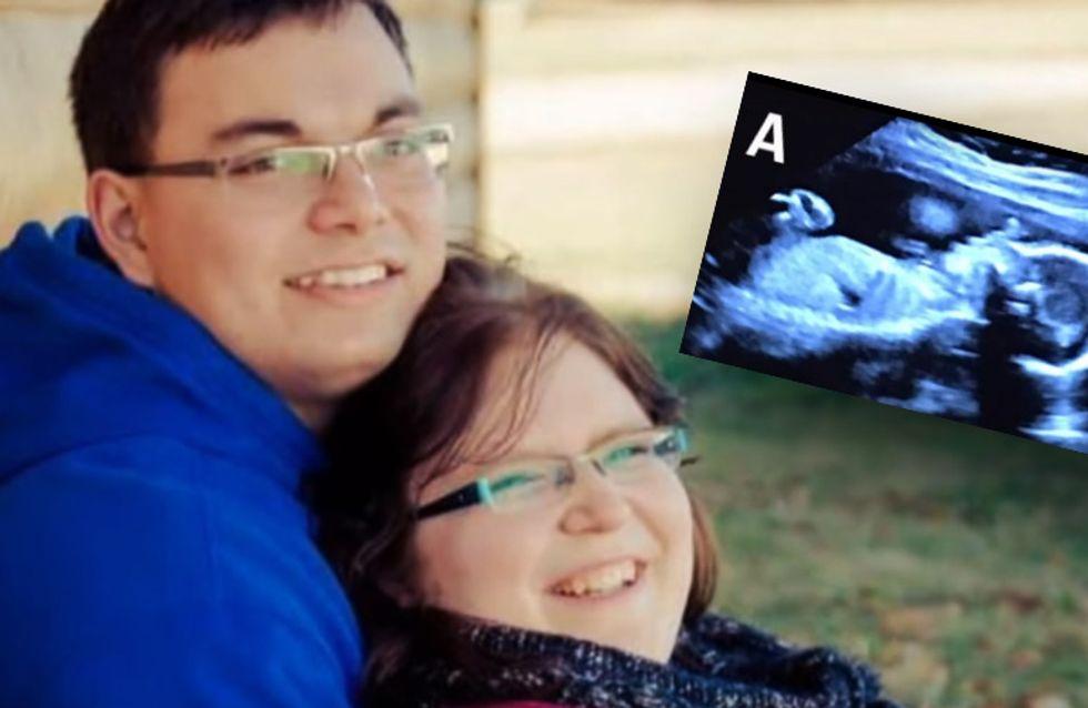 Finalmente incinta! Quando lei fa l'ecografia però, ecco l'incredibile scoperta...