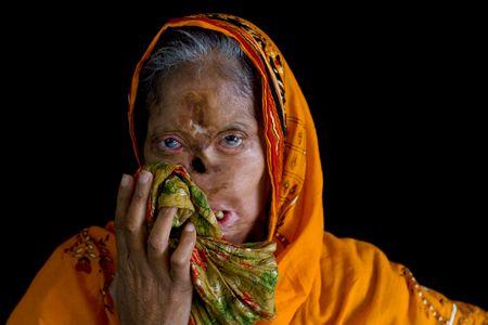 Bashiran Bibi, 45 ans, brûlée par son mari