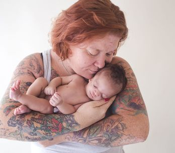 Syndrome de Treacher Collins : Quand l'enfant adopté n'est pas celui que l'on at