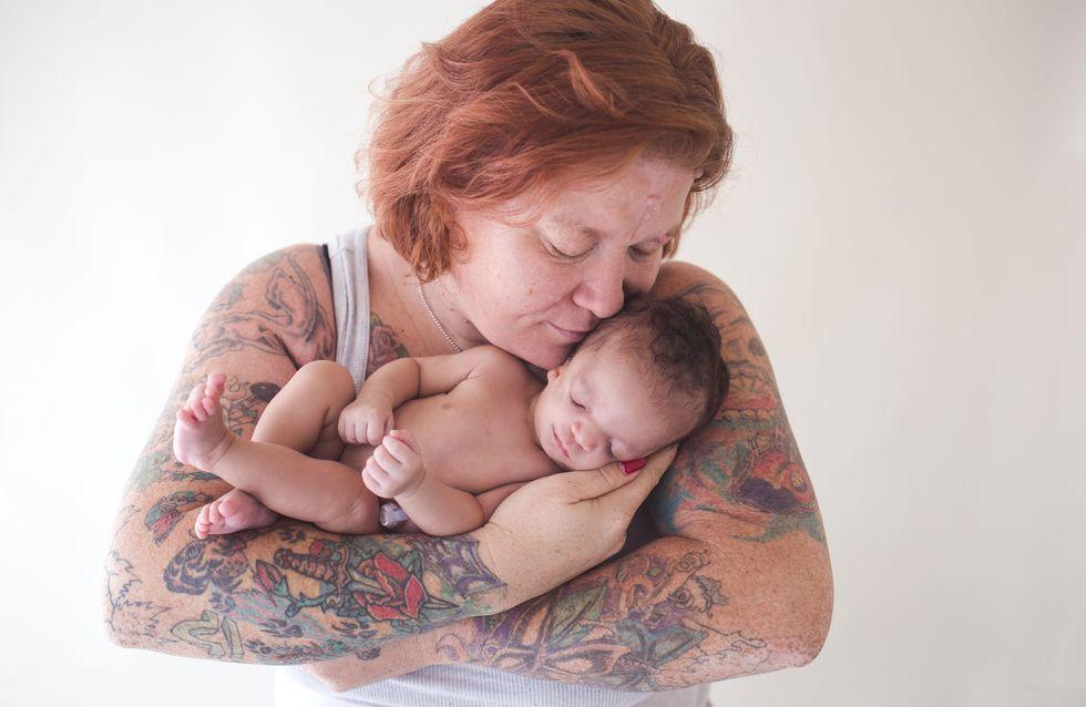 Syndrome de Treacher Collins : Quand l'enfant adopté n'est pas celui que l'on attendait