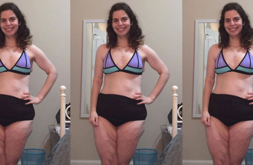 This Woman's First Bikini Photo Has Gone Viral For All The Right Reasons
