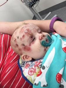 Elle partage des photos chocs de son bébé infecté par la varicelle