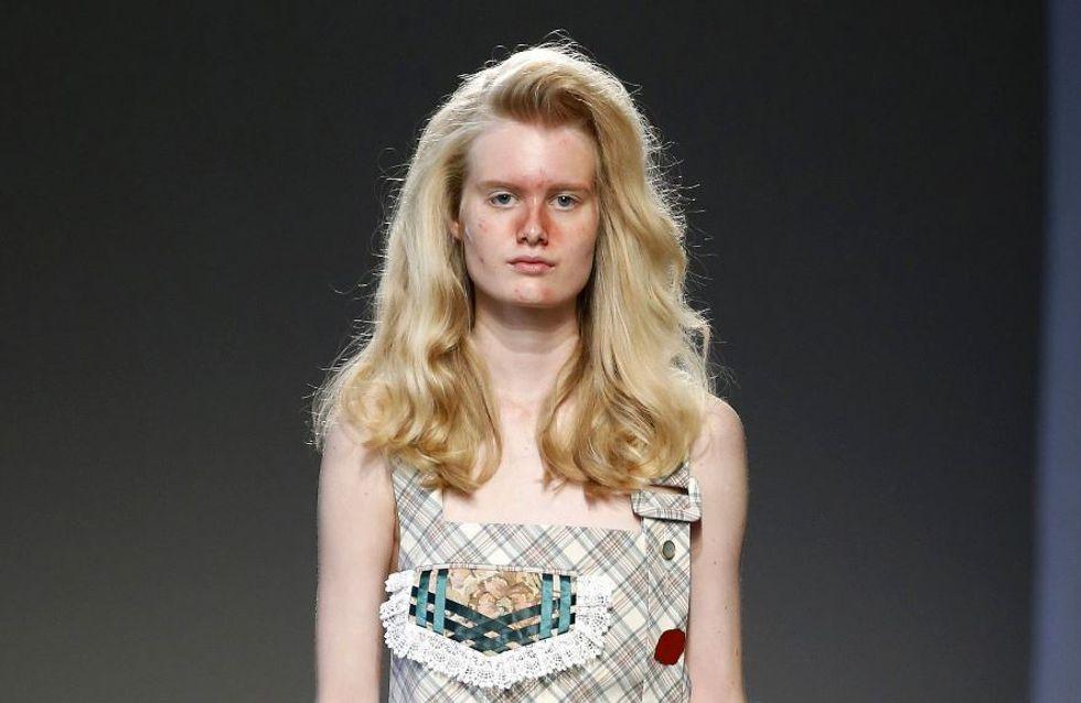 Crise d'acné sur le podium de la fashion week milanaise