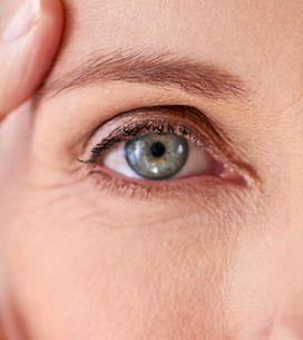 Orzaiolo: cause e rimedi dell'infezione all'occhio