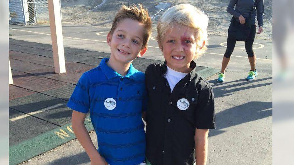 Ein 6-Jähriger schämt sich für sein auffälliges Feuermal - bis er auf diesen Jungen trifft