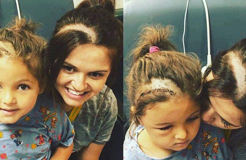 Weil ihre Tochter sich für ihre Narbe schämt, tut diese Mutter etwas wirklich Bewegendes