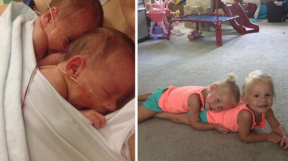 Ces deux jumelles sont nées en se tenant la main, deux ans plus tard elles sont toujours inséparables (Photos)