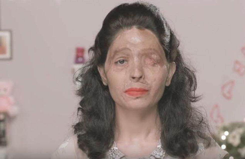 Victime d'une attaque à l'acide, cette jeune femme défilera à la fashion week new-yorkaise