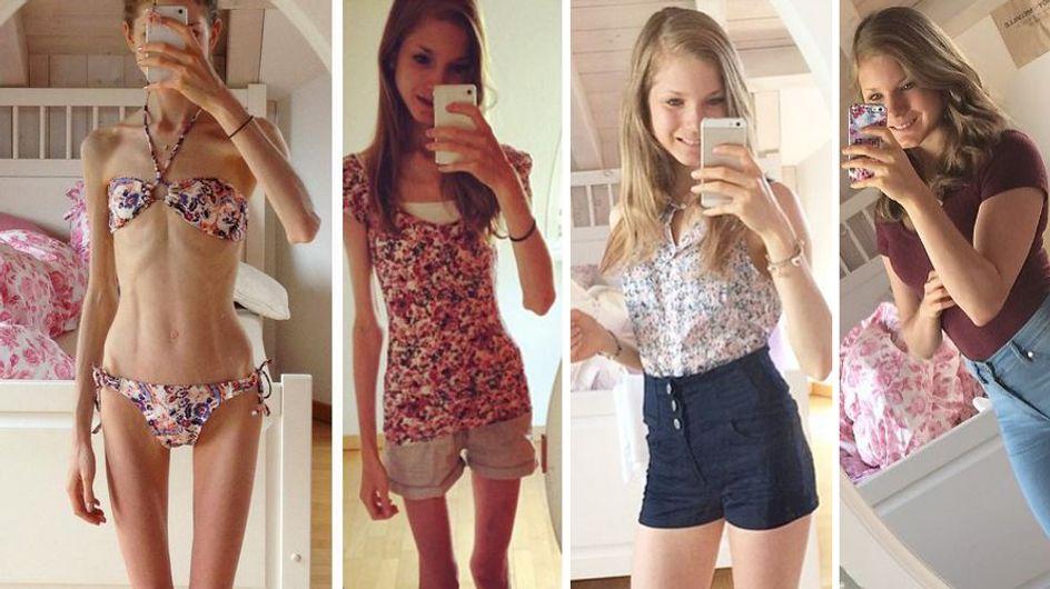 Unglaubliche Verwandlung: Diese junge Frau wog nur 22 Kilogramm, heute liebt sie ihren Körper