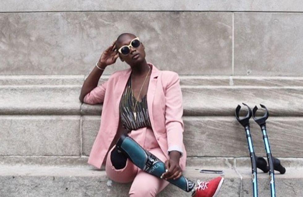 Amputée d'une jambe à 18 ans, cette blogueuse mode prend sa revanche
