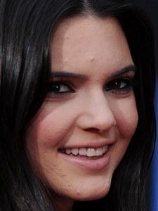 Kendall Jenner, victime d'acné à l'âge de 14 ans
