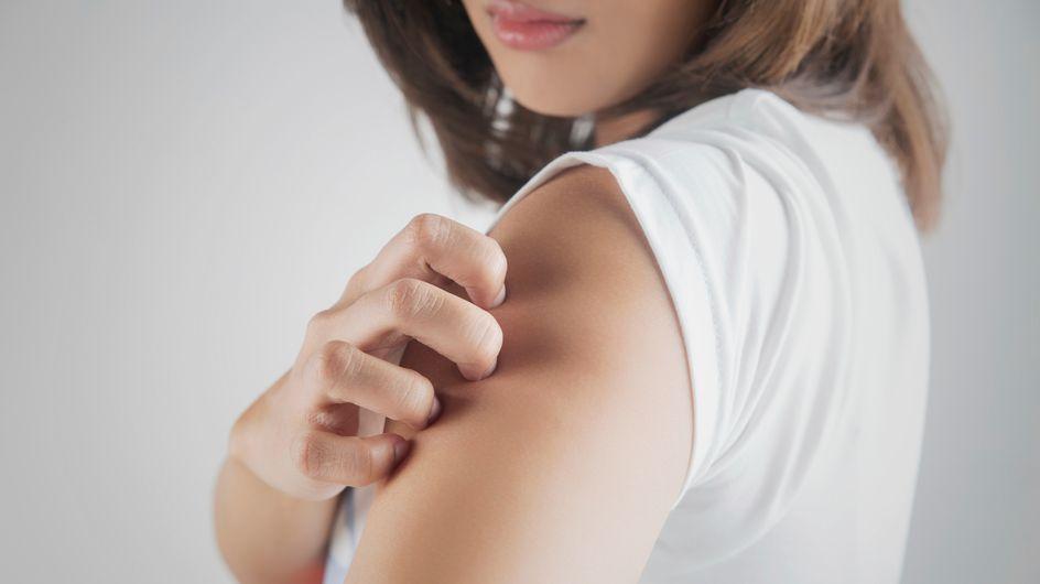 Allergies cutanées : apprenez à les reconnaître