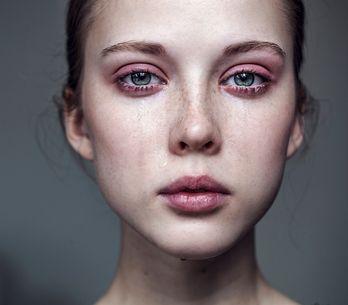 El lado emocional de la dermatología. ¿Cómo nos afectan los problemas de la piel