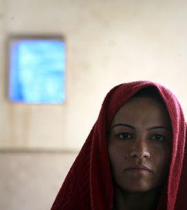 Esclave sexuelle de Daesh, elle se brûle le visage pour échapper au viol (Photos